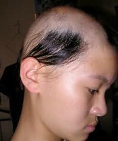 сонник пучок волос