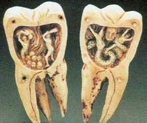 сонник выпал коренной зуб
