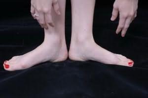 онемение ног и рук причины