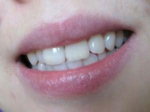 Сонник Выпал зуб без крови, к чему снится выпал зуб без крови