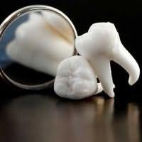 выпали передние зубы