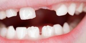 сонник вырос новый зуб